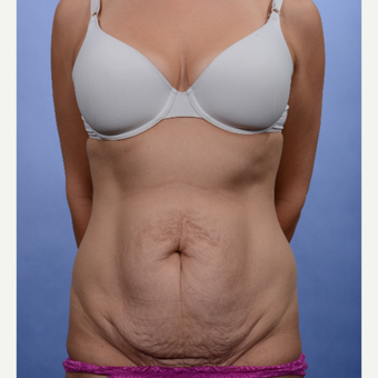 Tummy Tuck before 3052362