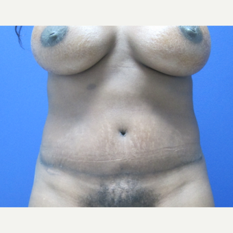 35-44 year old woman treated with Mommy Makeover after 3695900