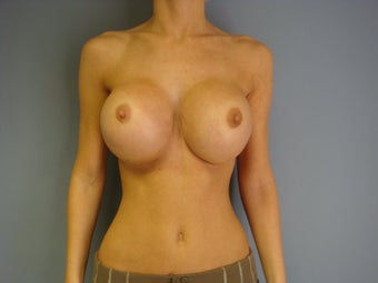 27yo Breast Augmentation Revision before 989658