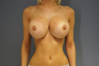 27yo Breast Augmentation Revision after 989658