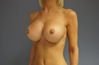 27yo Breast Augmentation Revision 989658