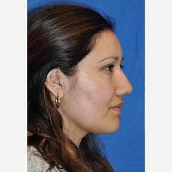 25-34 year old woman treated with Rhinoplasty after 3248059