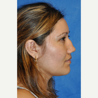25-34 year old woman treated with Rhinoplasty before 3248059