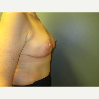 Breast Reduction with Anchor Pattern, Side View after 3744945