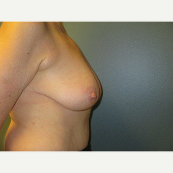 Breast Reduction with Anchor Pattern, Side View before 3744945