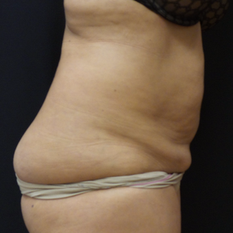 Tummy Tuck and Liposuction before 3012655