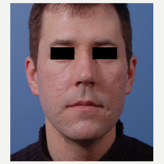 35-44 year old man treated with Acne Scars Treatment after 3749302