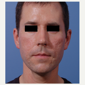 35-44 year old man treated with Acne Scars Treatment before 3749302