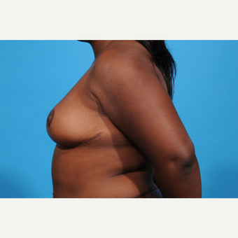 25-34 year old woman treated with Breast Reduction after 3777005