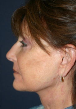 65-74 year old woman treated with Facelift after 1669992