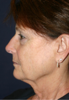 65-74 year old woman treated with Facelift before 1669992