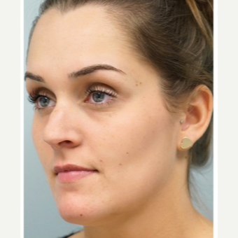 25-34 year old woman treated with Revision Rhinoplasty before 3686803