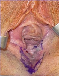 Vaginoplasty Before and After in the OR before 656612