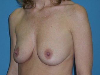 Breast Lift/Augmentation 611041