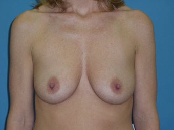 Breast Lift/Augmentation before 611041