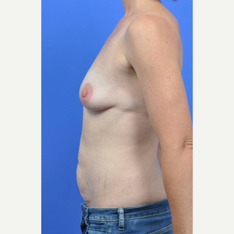 35-44 year old woman treated with Breast Implant Removal before 3289209