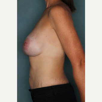 35-44 year old woman treated with Breast Implant Removal after 3289209