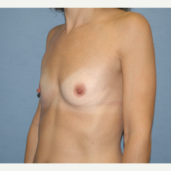 45-54 year old woman treated with Breast Augmentation before 3124559