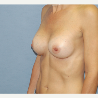 45-54 year old woman treated with Breast Augmentation after 3124559