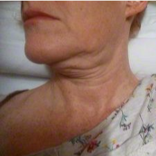 45-54 year old woman treated with Face & Neck Lift before 3274854