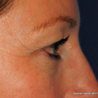 35-44 year old woman treated with Eyelid Surgery before 3624405