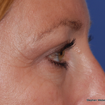 35-44 year old woman treated with Eyelid Surgery after 3624405