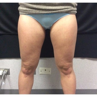 25-34 year old woman treated with CoolSculpting/Inner Thighs and Outer Saddlebags before 1968115