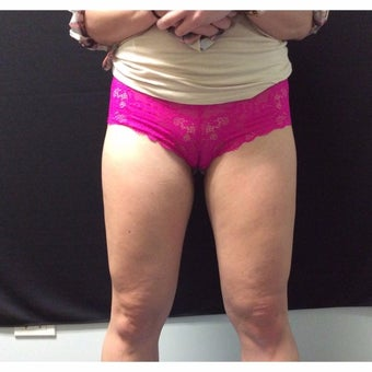 25-34 year old woman treated with CoolSculpting/Inner Thighs and Outer Saddlebags after 1968115