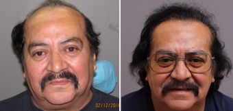 55-64 year old man treated with Hair Transplant