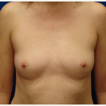 35-44 year old woman treated with Breast Implants before 3671001
