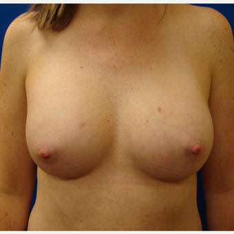 35-44 year old woman treated with Breast Implants after 3671001