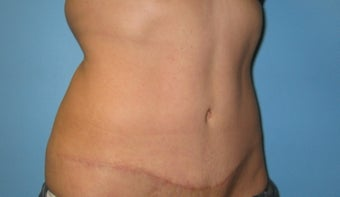 Tummy Tuck after 144382