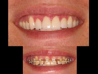 Whitening and porcelain veneers before 119939