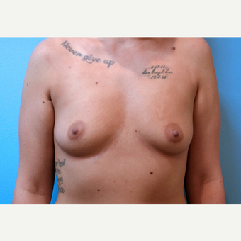 25-34 year old woman treated with Breast Implants before 3439930