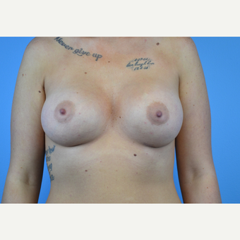 25-34 year old woman treated with Breast Implants after 3439930