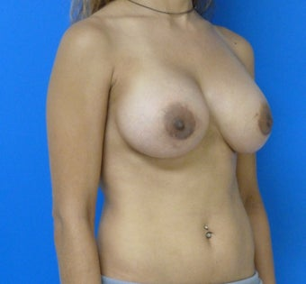 Breast Augmentation - Saline 315852