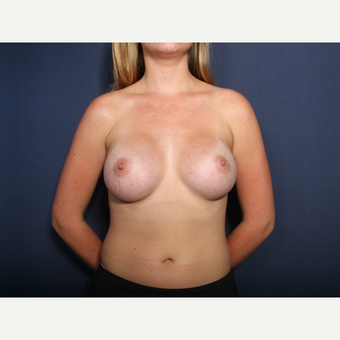 18-24 year old woman treated with Breast Augmentation (view 1 of 2) after 3103331