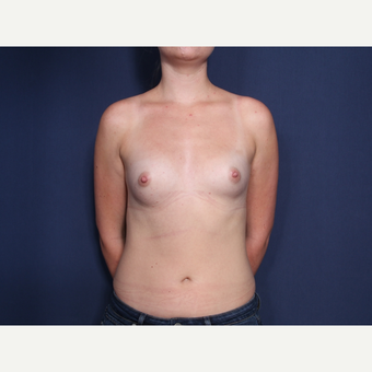 18-24 year old woman treated with Breast Augmentation (view 1 of 2) before 3103331