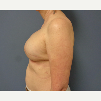 55-64 year old woman treated with Breast Reconstruction after 3737964
