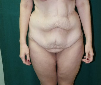 25-34 year old woman treated with Body Lift before 3460083