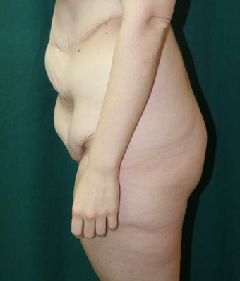 25-34 year old woman treated with Body Lift 3460083