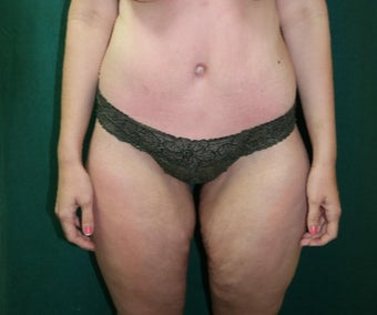 25-34 year old woman treated with Body Lift after 3460083