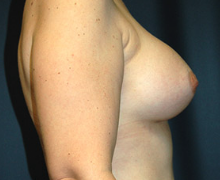 Breast Implants after 3545133