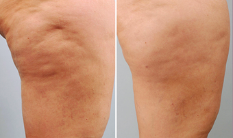 Cellulaze before 996932