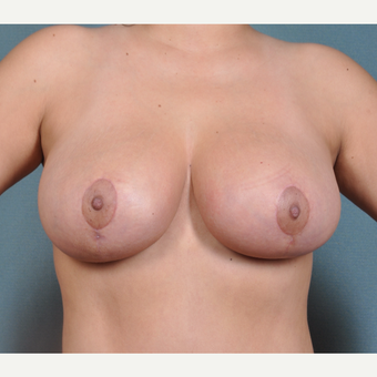 27 year old woman 6 weeks post breast lift with small reduction after 3617014