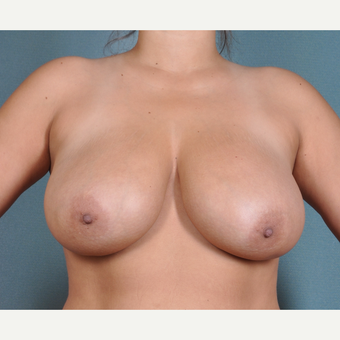 27 year old woman 6 weeks post breast lift with small reduction before 3617014