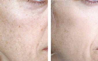 TCA Chemical Peel with 35% TCA before 6347