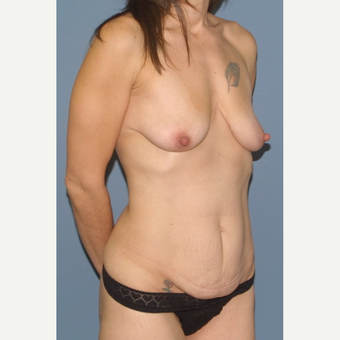 35-44 year old woman treated with Breast Lift before 3454584