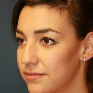 18-24 year old woman treated with Rhinoplasty before 3559775