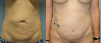 32 Year Old Female Underment a Full Abdominoplasty ( Tummy Tuck) before 1139914